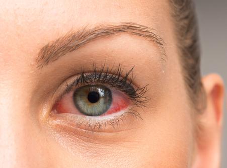 Zespół suchego oka – przyczyny i profilaktyka