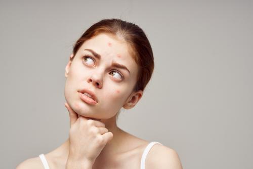 Jak pielęgnować skórę trądzikową?